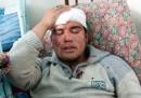 Kirghizistan, la situazione peggiora