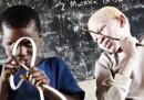 Il parlamentare albino in Tanzania ha paura