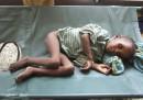 La carestia e i bambini in Somalia