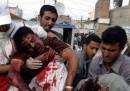 Perché a nessuno interessa lo Yemen