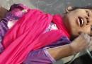 La donna trovata viva tra le macerie di Dacca