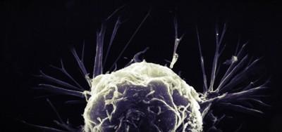 Prendere il cancro è solo sfortuna?