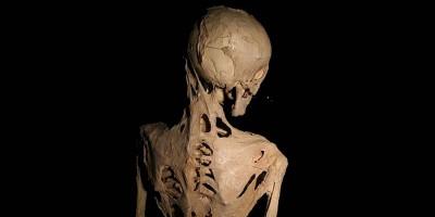 C'è una cura per la malattia che trasforma i muscoli in ossa?