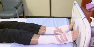 Abbiamo le idee più chiare su cosa abbia ferito i piedi del ragazzo australiano