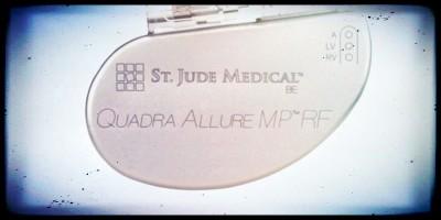 Ci sono 745mila pacemaker fallati nel mondo
