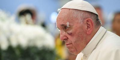 Perché il Papa ha un occhio nero