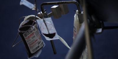 Il sangue giovane può fermare l'Alzheimer?