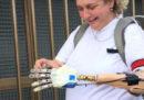 Come fa una mano bionica a