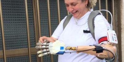 """Come fa una mano bionica a """"sentire"""""""
