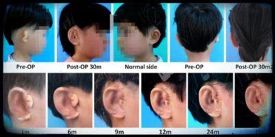 Queste orecchie sono state create in laboratorio