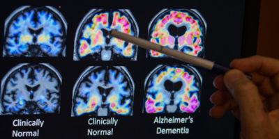 Gli herpes virus c'entrano con l'Alzheimer?