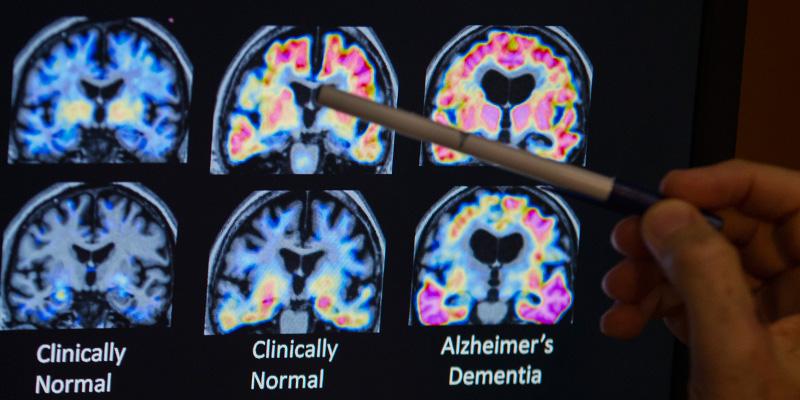C'è una relazione tra l'herpes e l'alzheimer?