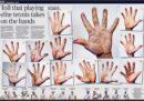Come sono ridotte le mani dei tennisti a Wimbledon