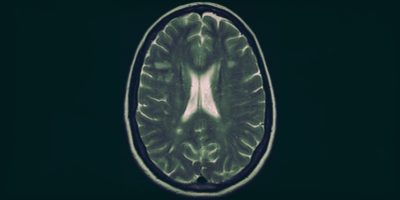Forse abbiamo trovato una molecola che innesca la sclerosi multipla