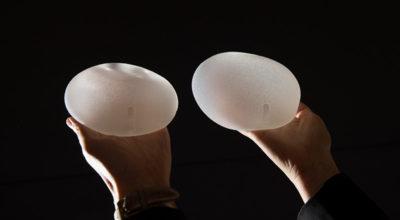 Le protesi mammarie e una rara forma di tumore