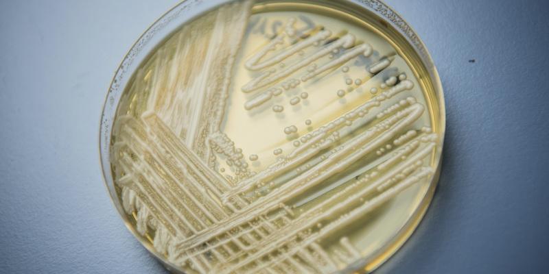 Allarme mondiale per la Candida auris: può uccidere in tre mesi