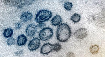 Il coronavirus se ne andrà col caldo?