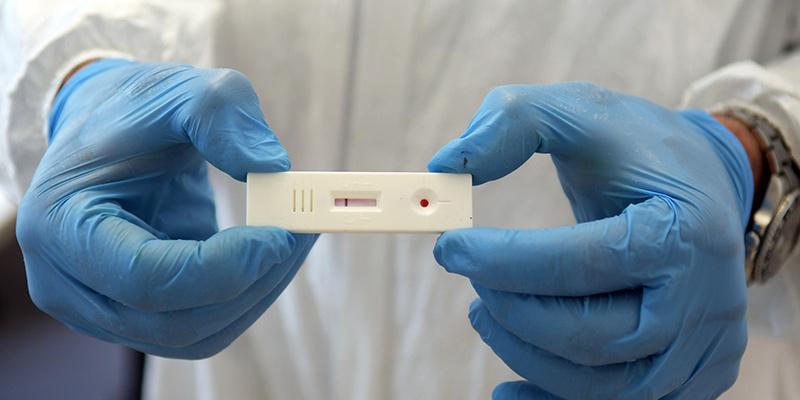 La complicata questione dei test sierologici - Il Post